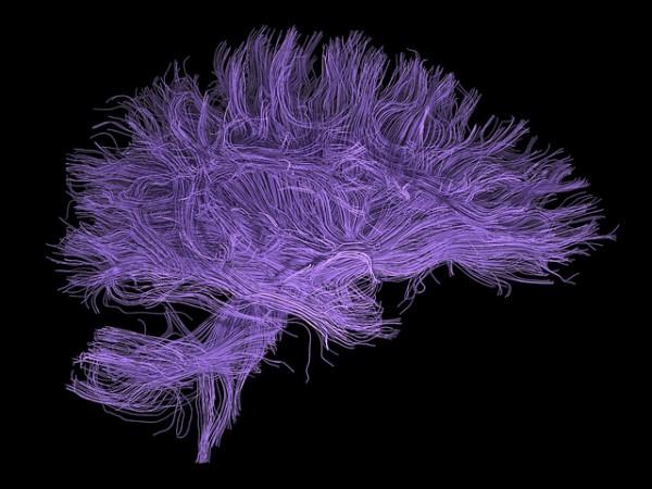 cerebro-600x450